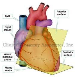 Acute margin of the heart. SVC= Superior vena cava