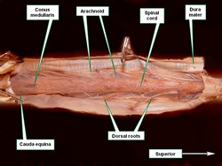 Spinal cord dissection, posterior view