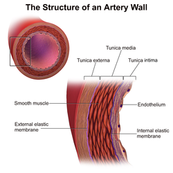 The structure of an arterial wall. Courtesy Blausen.com