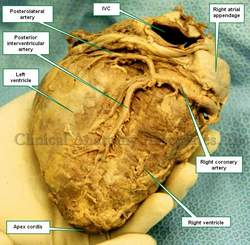 Posteroinferior view of the heart. IVC=inferior Vena Cava