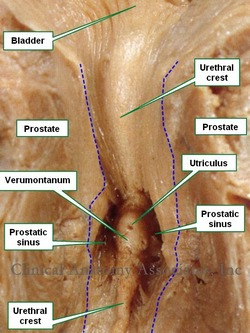 Anterior view of section of the prostate. The blue dotted line shows the edges of the prostatic urethra