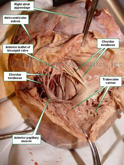 Interior of the right ventricle - Human heart