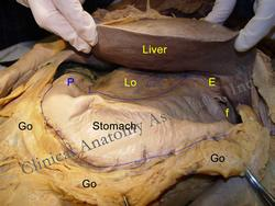 Abdominal dissection