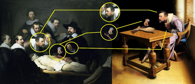 A comparison of Rembrandt's work and a painting said to depict Verheyen dissecting his own leg